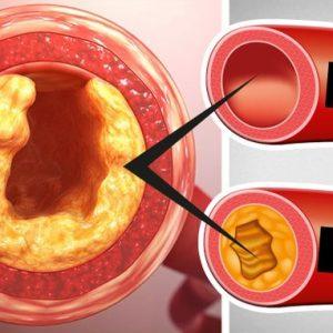 5 aliments qui contrecarrent les graisses saturées