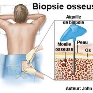 Biopsie de la moelle osseuse: comment et pourquoi est-elle effectuée, combien cela fait-il mal?