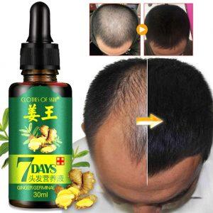Quatre remèdes naturels pour la perte de cheveux